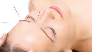 czym jest akupunktura